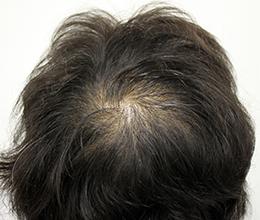 45歳女性(0~6ヶ月)Before