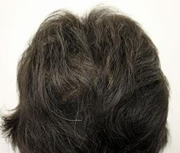 45歳女性(0~6ヶ月)After