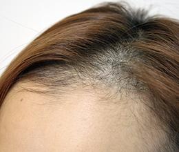 30代女性(0~6ヶ月)Before