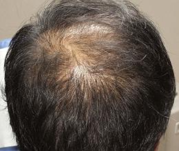 48歳男性(0~6ヶ月)Before