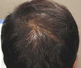 48歳男性(0~6ヶ月)After
